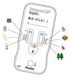 immunocap_rapid1